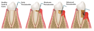 Plum Grove Dental Associates - Periodontal Disease