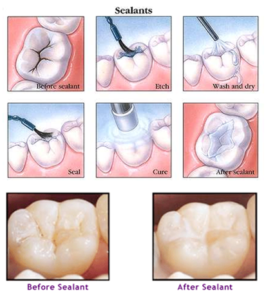 Plum Grove Dental Associates - Sealants