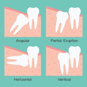 Plum Grove Dental Associates - Wisdom Teeth Removal