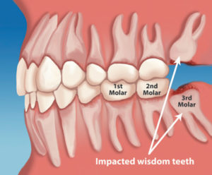 Plum Grove Dental Associates - Wisdom Teeth