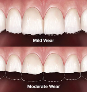 Plum Grove Dental Associates - Worn Teeth