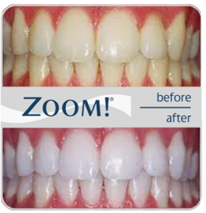 Plum Grove Dental Associates - Whitening - Zoom - Before and After