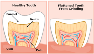 Bruxism illustration damage to a tooth