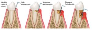 Plum Grove Dental Associates - Periodontal Disease