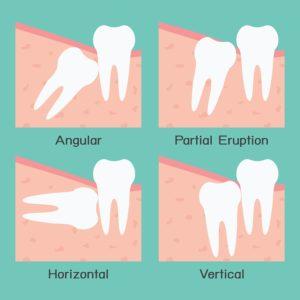 Plum Grove Dental Associates - Wisdom Teeth Removal