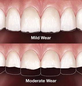 Plum Grove Dental Associates - Worn Teeth