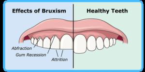 Bruxism illustration - damaged versus healthy teeth