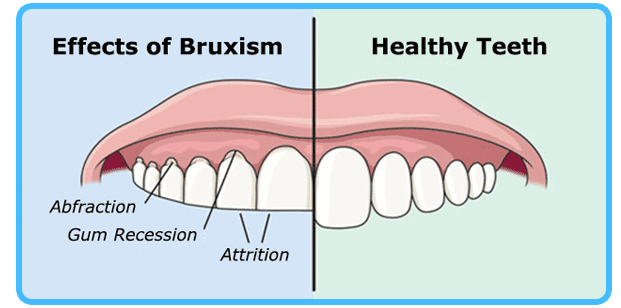 Bruxism In Palatine Plum Grove Dental Center